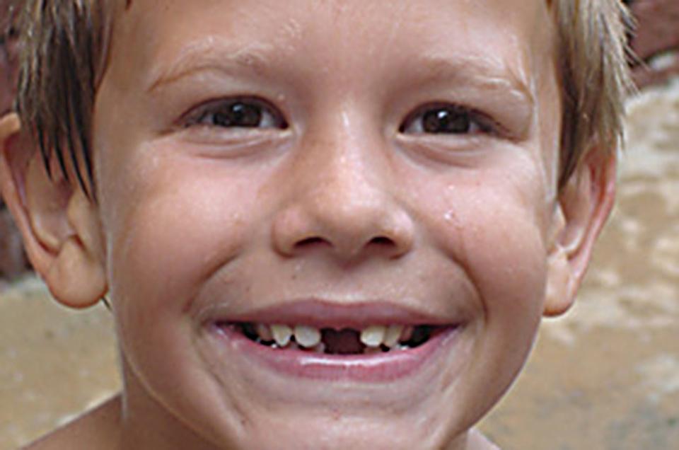 caida dientes